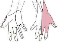 Senzitivní inervace ruky