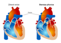 Pulmonary valve stenosis cs.png