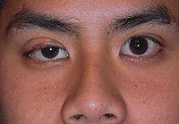 Pokleslé oční víčko